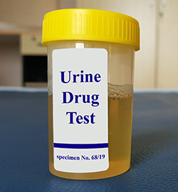 Laboratory sample of urine for drugs or substance test.